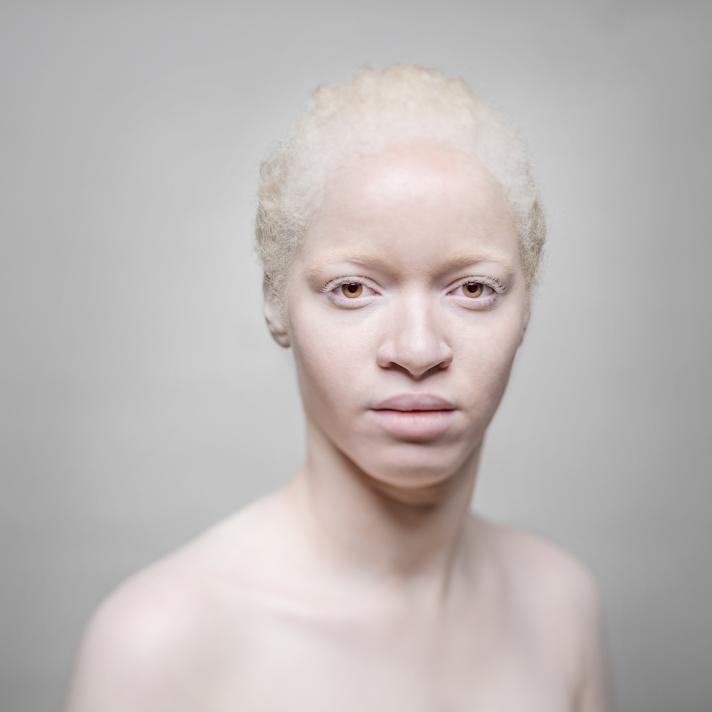 albinosaliceleveque-1